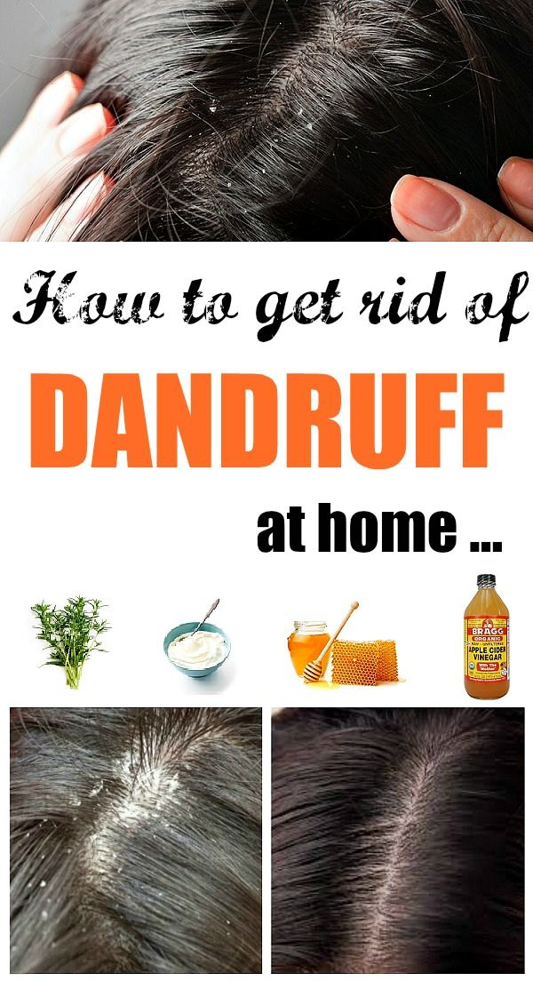 Homemade Solutions to get rid of Dandruff Instant