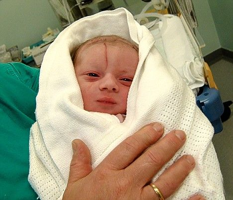 Thousands Of Infants Injured Each Year Due To Caesarean
