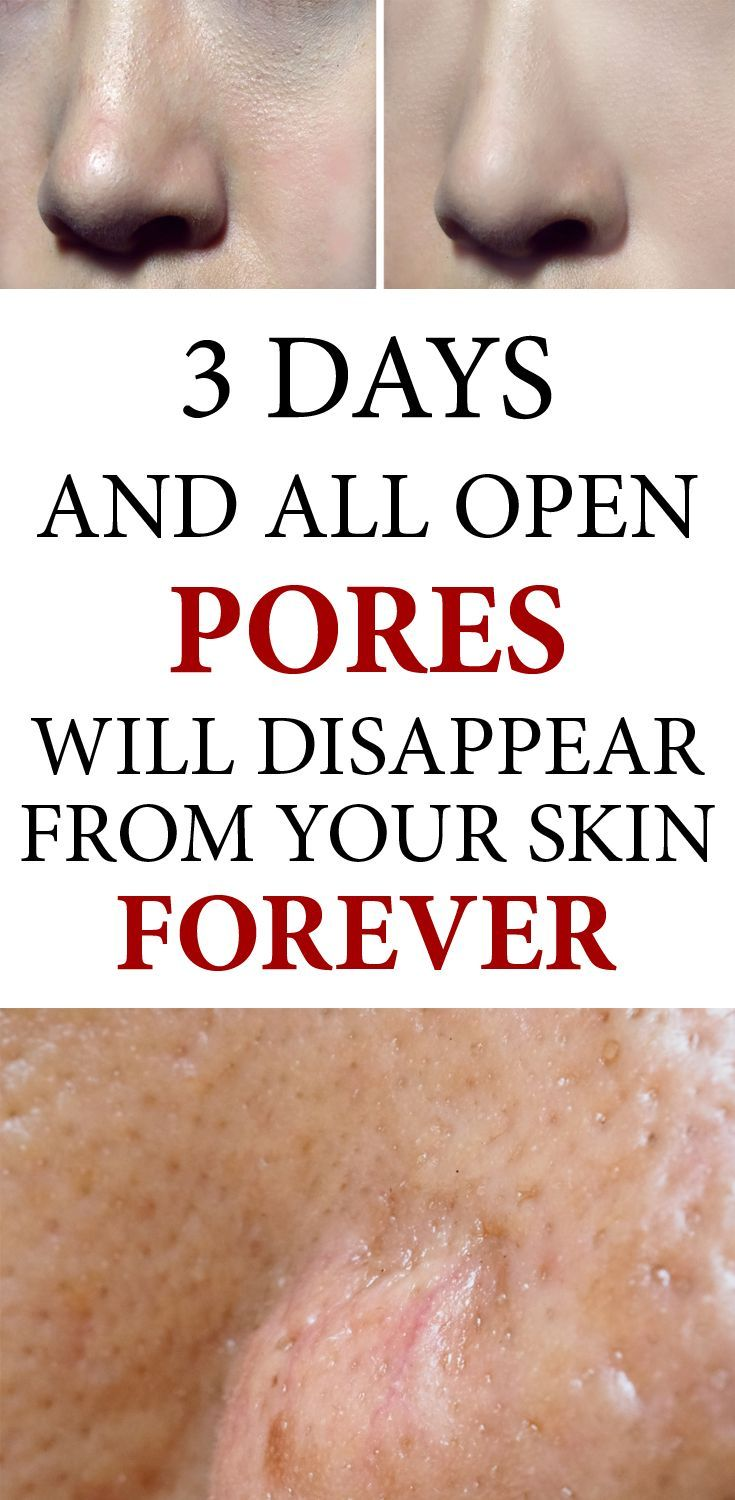 3 Days and All Open Pores Will Disappear from Your Skin Forever -   14 skin care Pores beauty secrets ideas