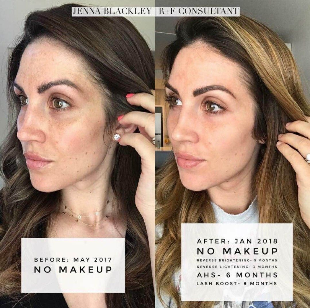 Make your skin glow The ultimate skincare routine to fix uneven