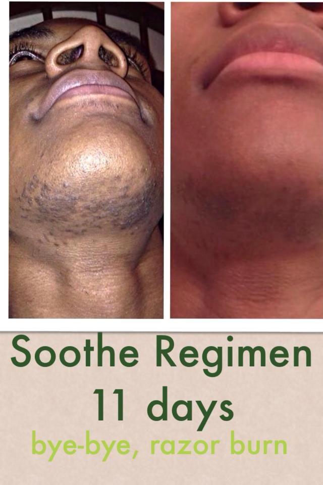 Pin By T J Ino Dream Seeker On Eczema Rosacea