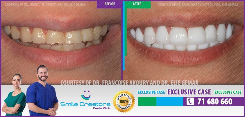 Congratulations Reem on your new Smile ! Thank You Dr Elie