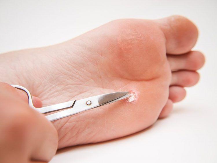 Мозоль на пальце ноги куриная попа
