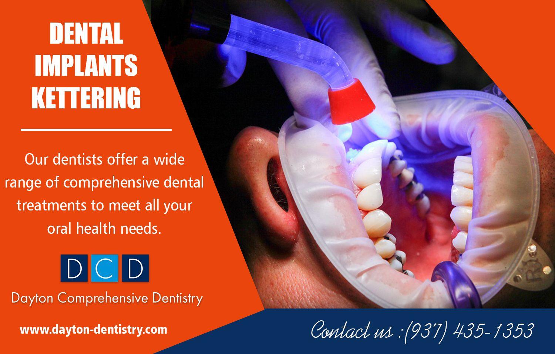 Dental implants in kettering emergency dentist dental