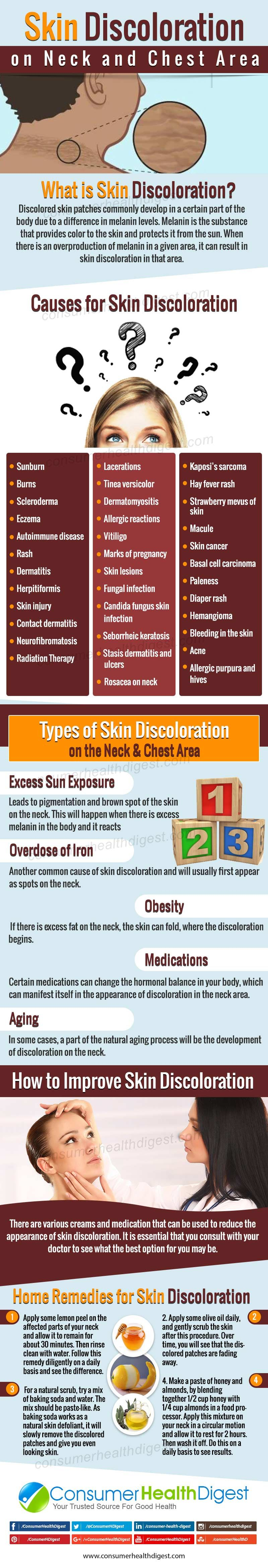 What Causes Skin Discoloration on Neck and Chest? Know ...