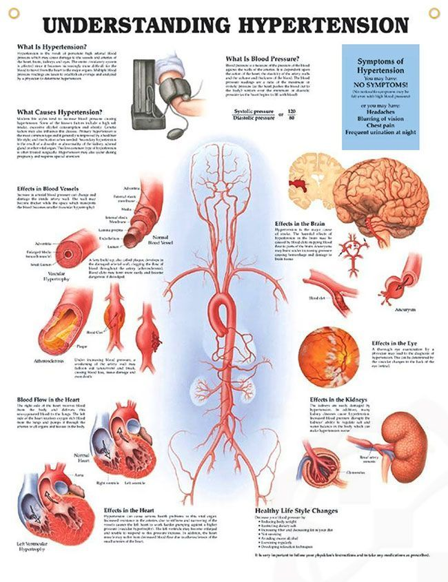Understanding Hypertension anatomy poster discuses types, causes and ...