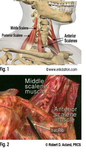 Anterior Scalene Technique Massage Pinterest Massage Therapy