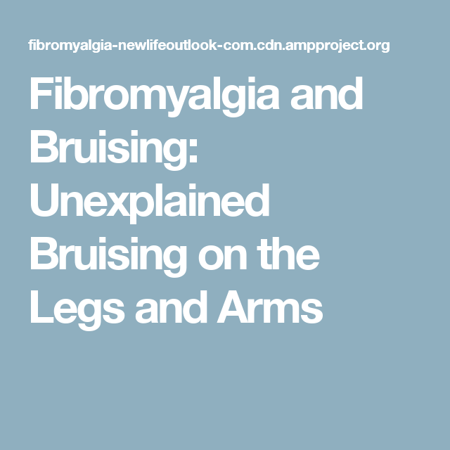Fibromyalgia and Bruising: Unexplained Bruising on the Legs and Arms