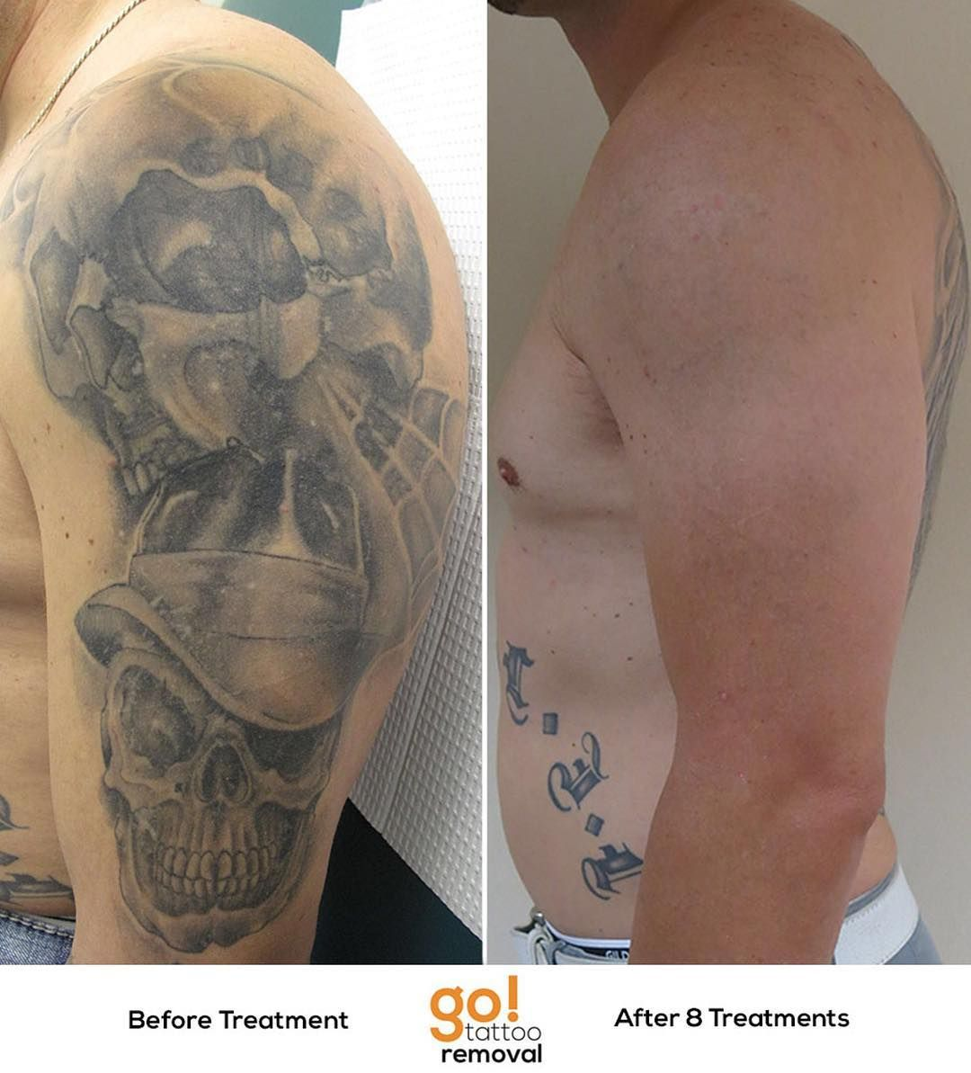 Laser Tattoo Removal Do You Have A Tattoo You Regret They