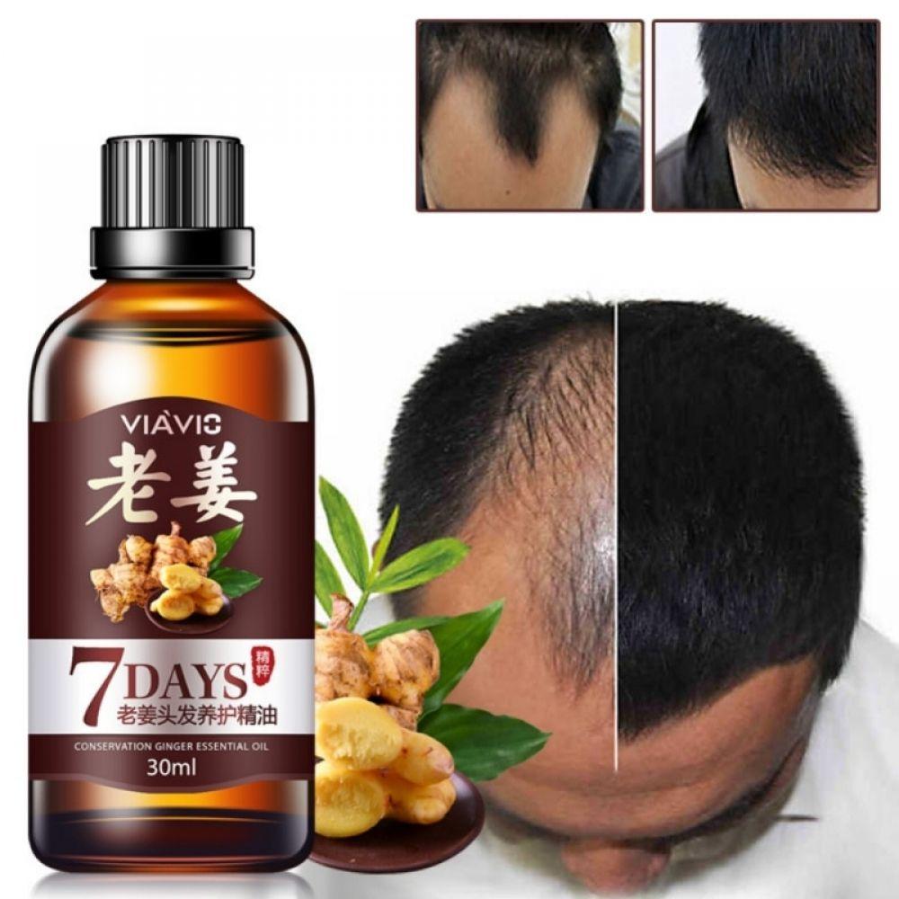 Conservation Ginger Essential Oil Anti-Hair Loss Treatment Nourish Repair Fast Powerful Hair Growth – Ghuro.com