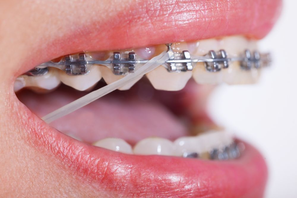 What Do Rubber Bands Do In Braces In Charleston Sc Braces Rubber Bands Metal Braces Braces Bands