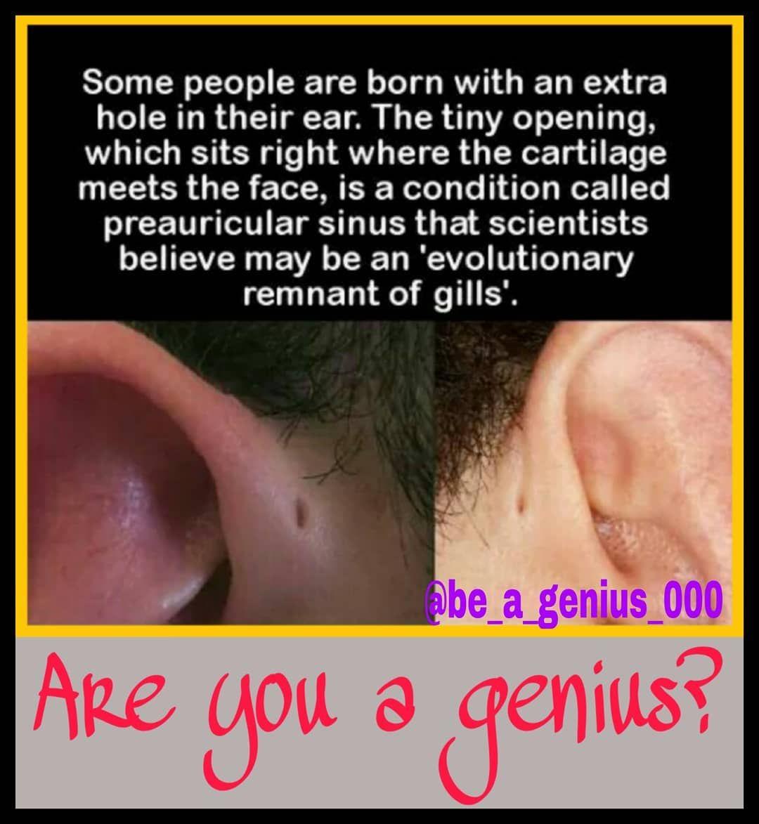 A preauricular sinus also known as a congenital auricular fistula, a