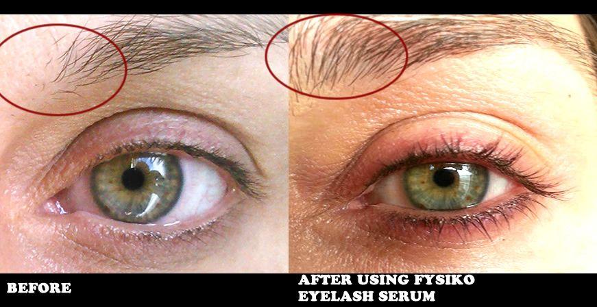 how can I grow longer eyelashes?   Grow eyelashes longer ...