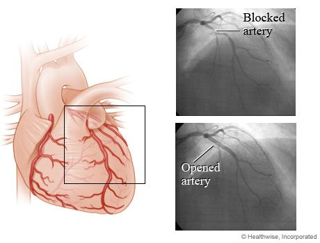 how to know heart blockage without angiography