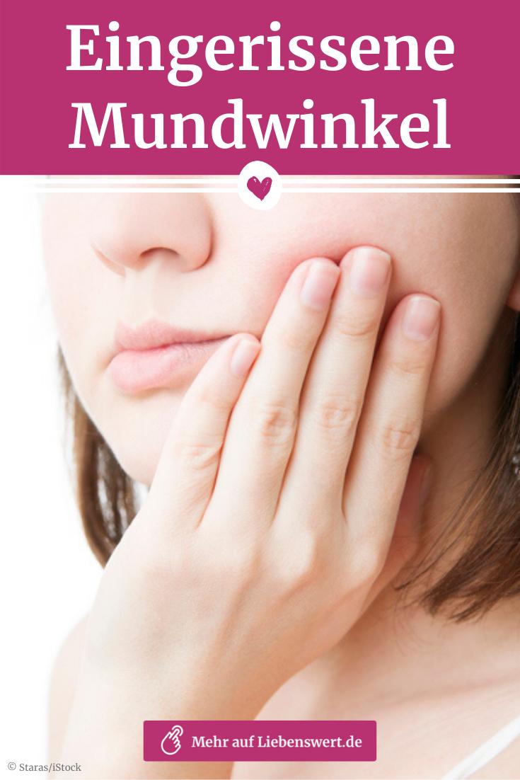 Eingerissene Mundwinkel Ursache Und Behandlung Eingerissene Mundwinkel Mundwinkel Eingerissene Mundwinkel Ursache