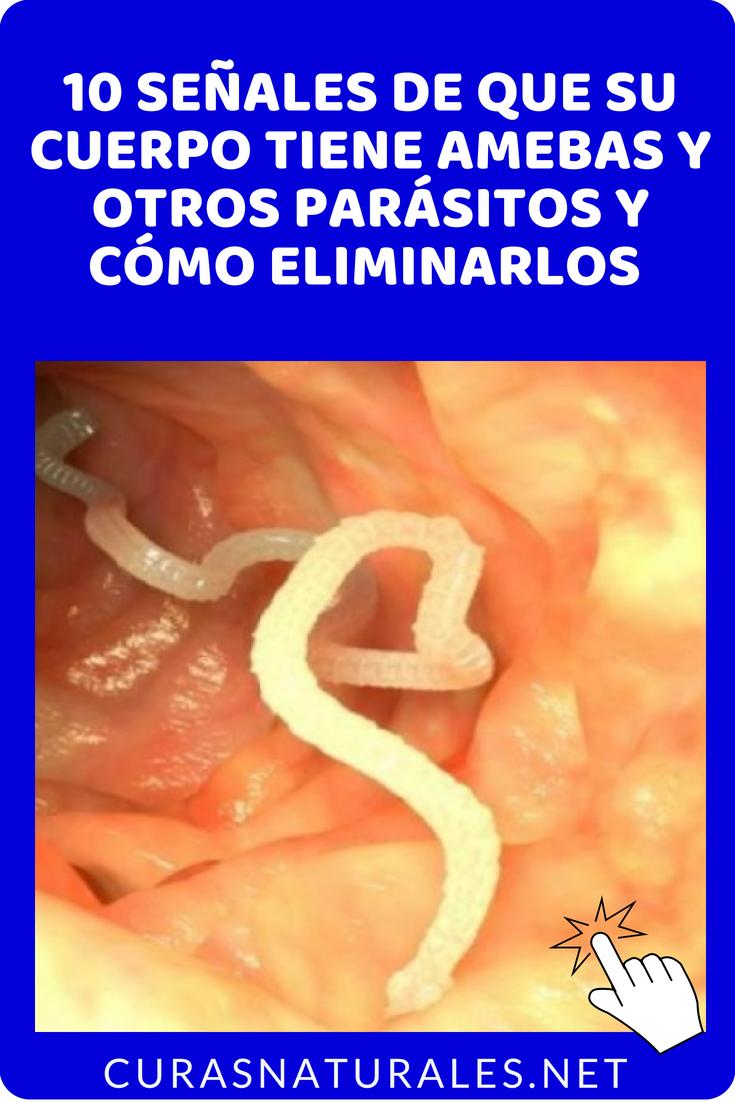 remedios naturales para gusanos en humanos