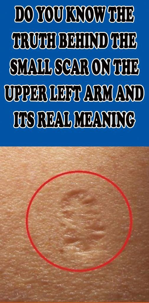 Do You Know The Truth Behind The Small Scar On The Upper Left Arm…