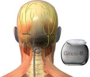 dolor en la cabeza trasera