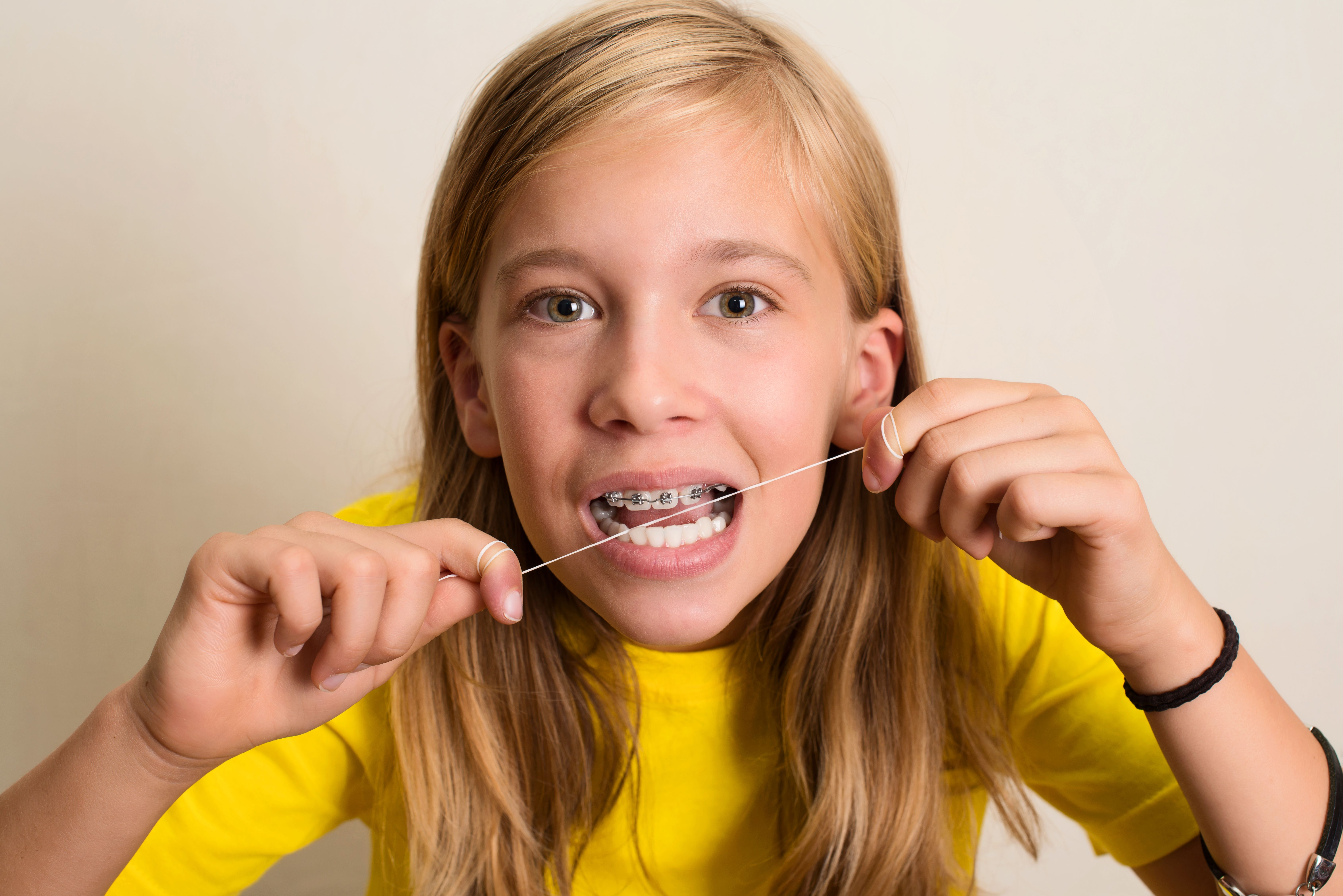 Floss every day to prevent tooth decay dentistry