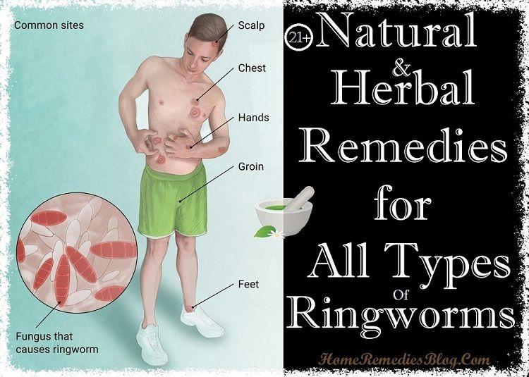 21 Homemade Remedies For Ringworm Treatment Ringworm Remedies