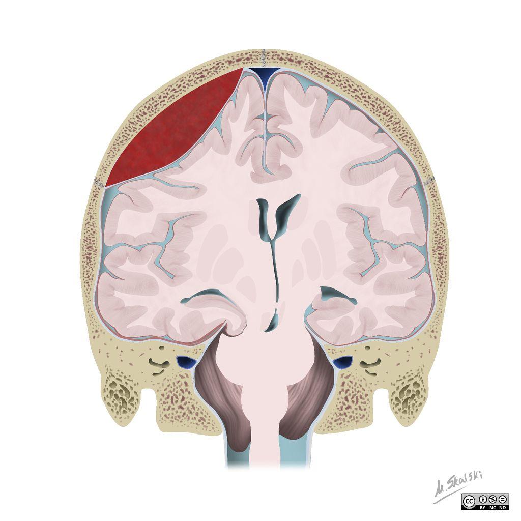 Brain herniation types | Radiology Case | Radiopaedia.org ...