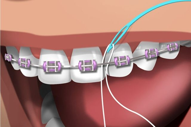 ced63bd42 Como passar o fio dental corretamente