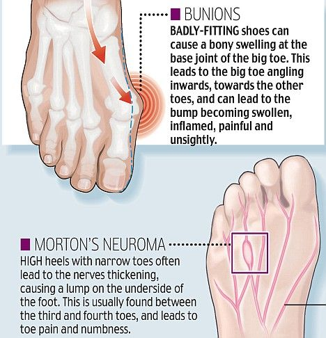 High heel horrors! The hidden cost to your body of those