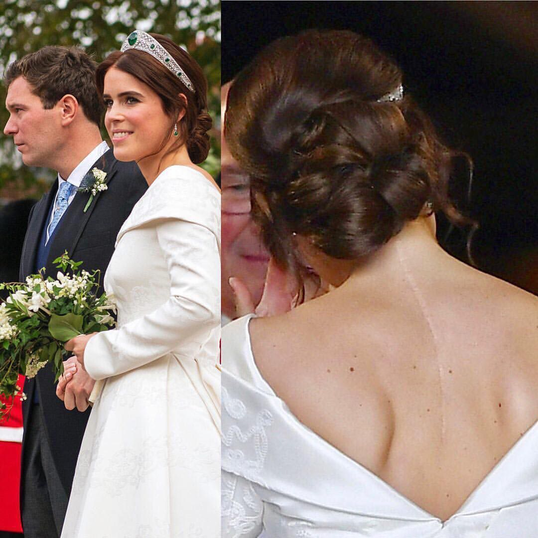 Princess Eugenie Went Without A Veil To Own Her Spinal Scar The Low Back Feature On The Dres Princess Eugenie Princess Eugenie Jack Brooksbank Royal Weddings [ 1080 x 1080 Pixel ]