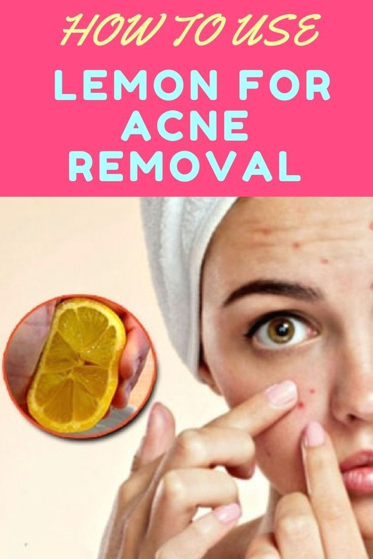 How to use lemon for acne removal skin care with images