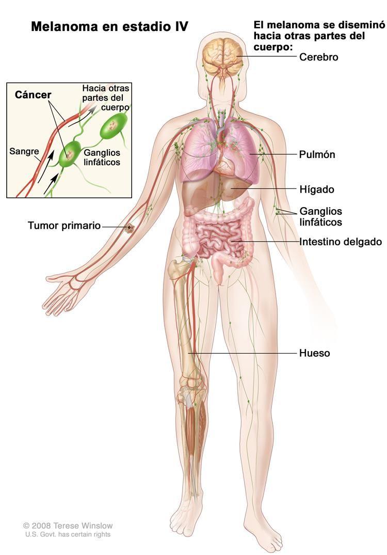 Melanoma en estadio IV; el dibujo muestra que el tumor primario se ...