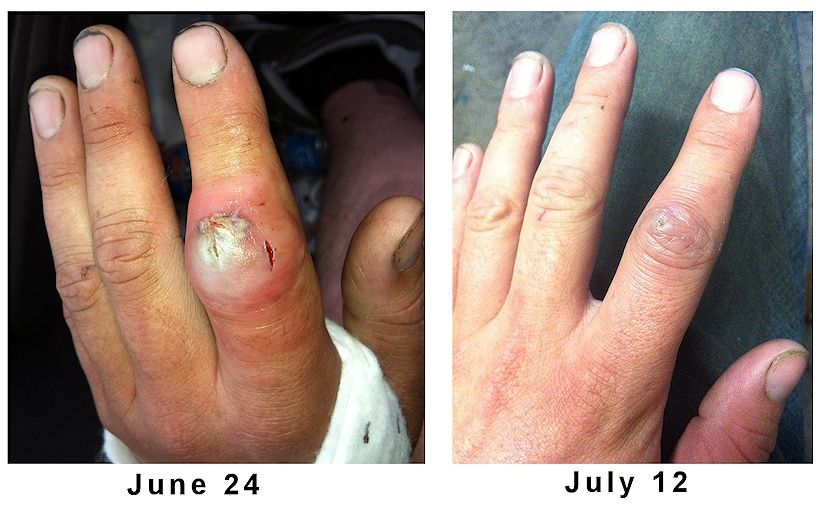 MRSA Staph Infection Healed Naturally | Pinterest | Cure, Essentials ...