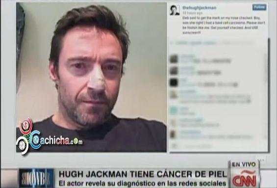 Actor Hugh Jackman revela por Redes Sociales que padece Cáncer de la Piel @MarielaCNN @JuanCarlosCNN #Video - Cachicha.com