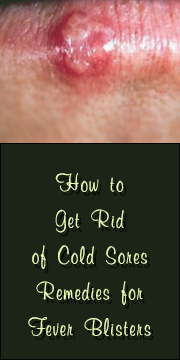 Cold Sores And Dating