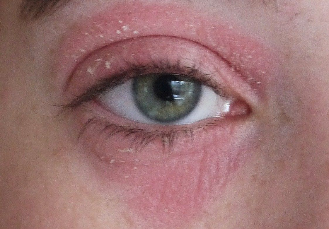 painful red rash under eyes Bing Images Dry skin