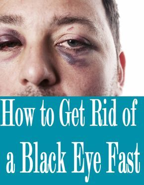 How To Get Rid Of Swelling Black Eyes Fast