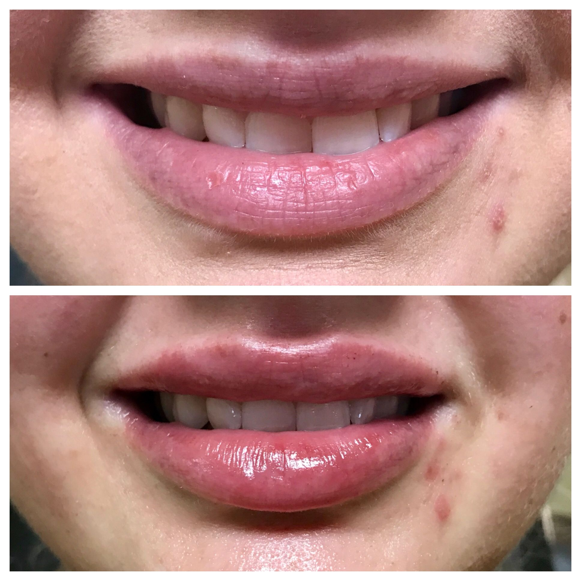 Pin by Brittany Perez on Cosmetic Injectables | Dermal