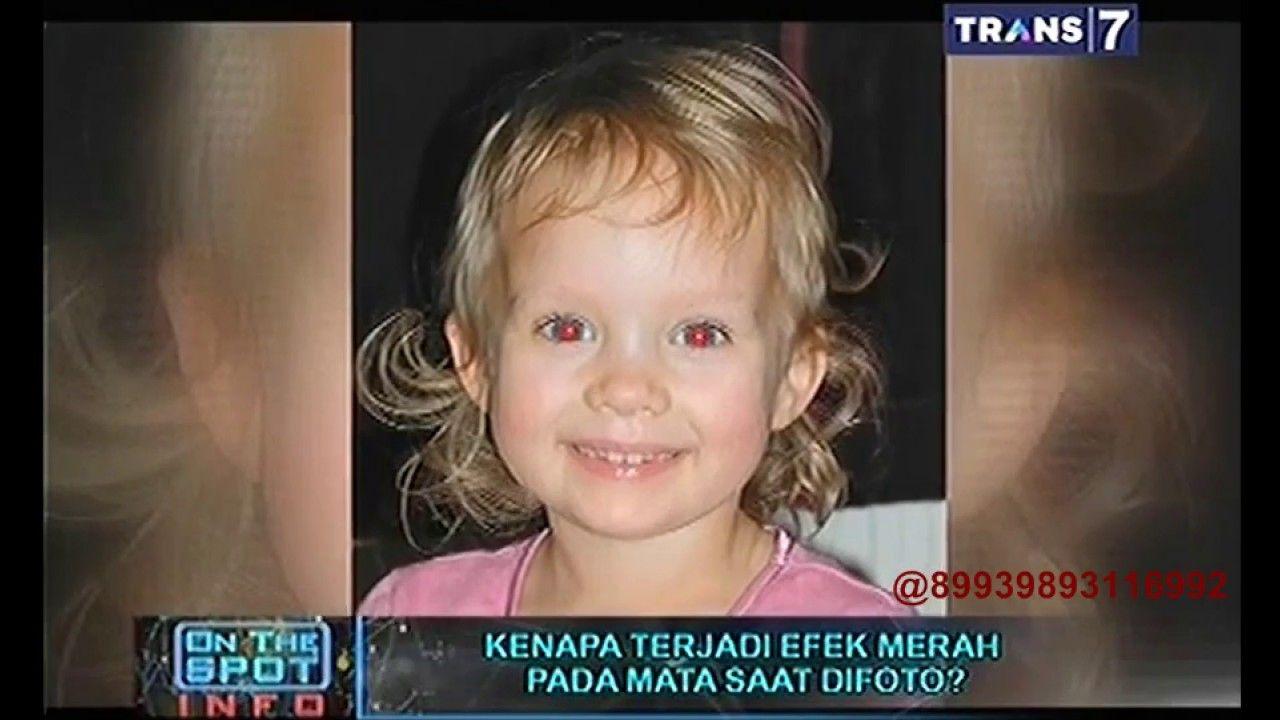 On The Spot Kenapa Terjadi Efek Merah Pada Mata Saat Difoto