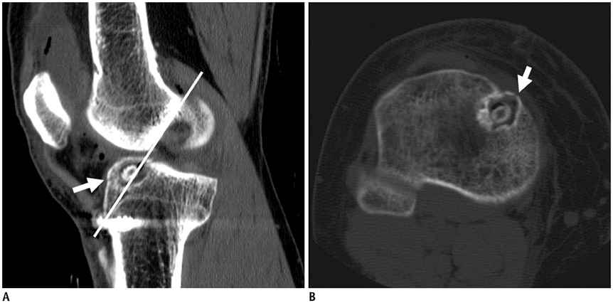 Acl Reconstruction Sagittal Ct Image Reveals Tibial Tunnel Is Drilled Anterior To Blumensaat S Line White Line Drawn Alon In 2020 B Image Impingement Line Drawing