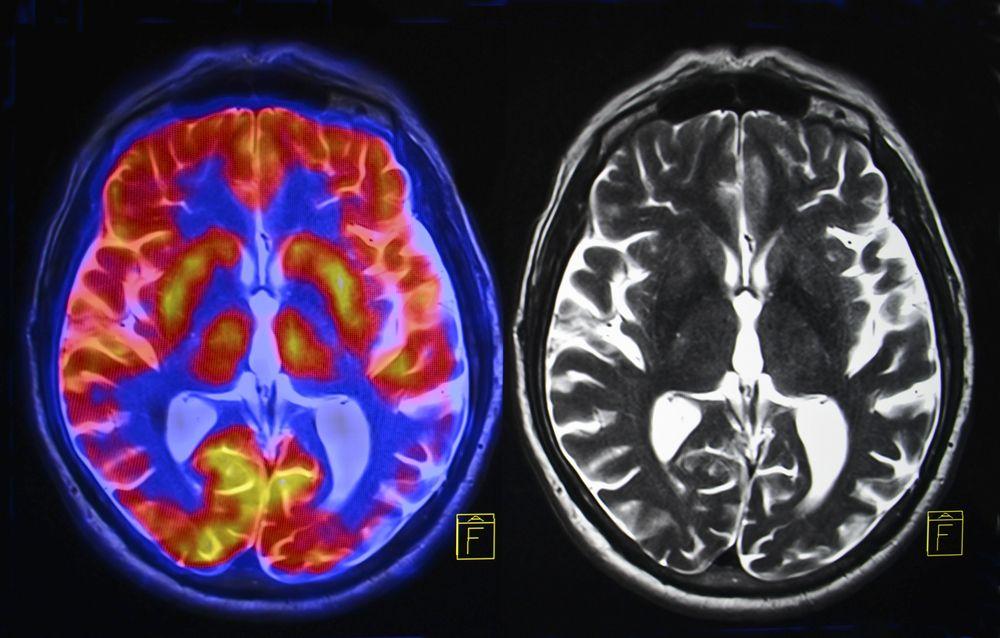 Study Finds Women Have More Active Brains Than Men  3ea13919b68