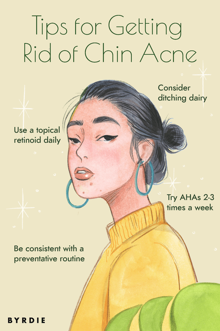How To Get Rid Of Chin Acne By Hacking Your Hormones Chin Acne Skin Care Acne Skin Care Pimples