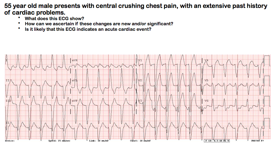Ecg Stc Lbbb Probable Acute Mi Traditionally It Was Taught That
