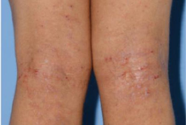 This image shows a patient with an eczema-like skin rash