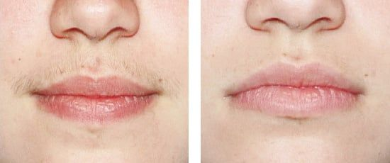 Laser Hair Removal In Delhi Is Best To Treat Your Unwanted Hair On Your Upper Lip  Many Women