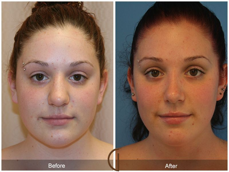 Before & After Orange County Rhinoplasty 10 California