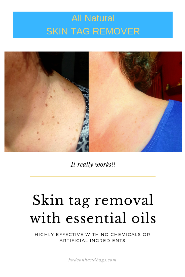 All Natural Skin Tag Removal Using Essential Oils Tested And