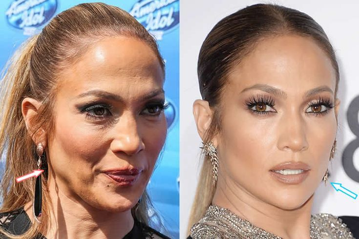 Jennifer lopez botox facelift before and after