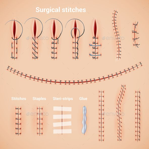 Surgical Stitches Infographic Set #Stitches, #Surgical, #Set, #Infographic #medicalstudents