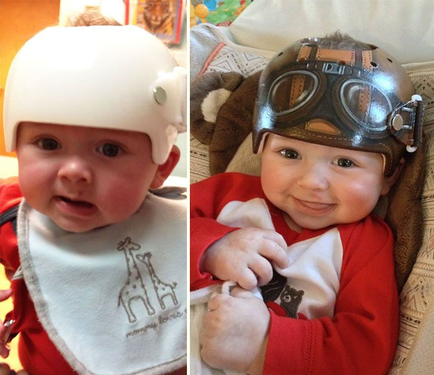 Artist Transforms Babies HeadShaping Helmets Into Beautiful Art - Baby helmet decals