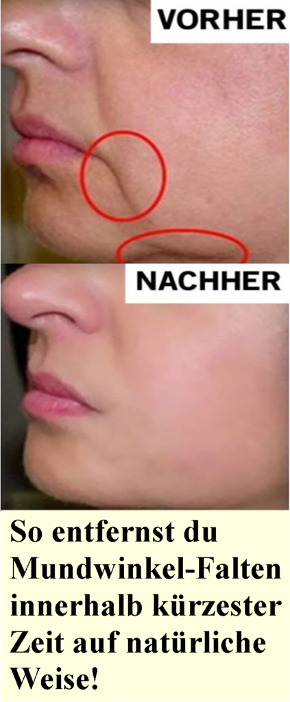 So entfernen Sie Mundwinkelfalten auf natürliche Weise in kürzester Zeit …