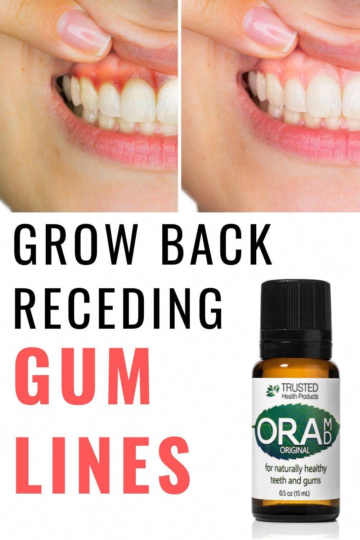 OraMD Original Strength in 2020 Receding gums, Grow back